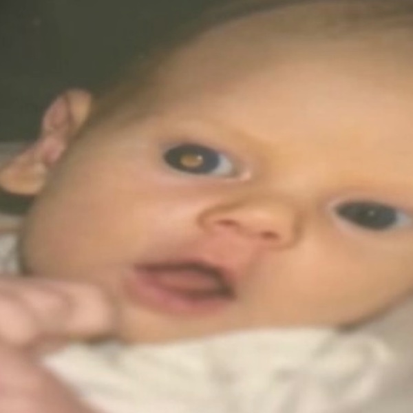 baby photo arizona golden eye retinoblastoma_89767