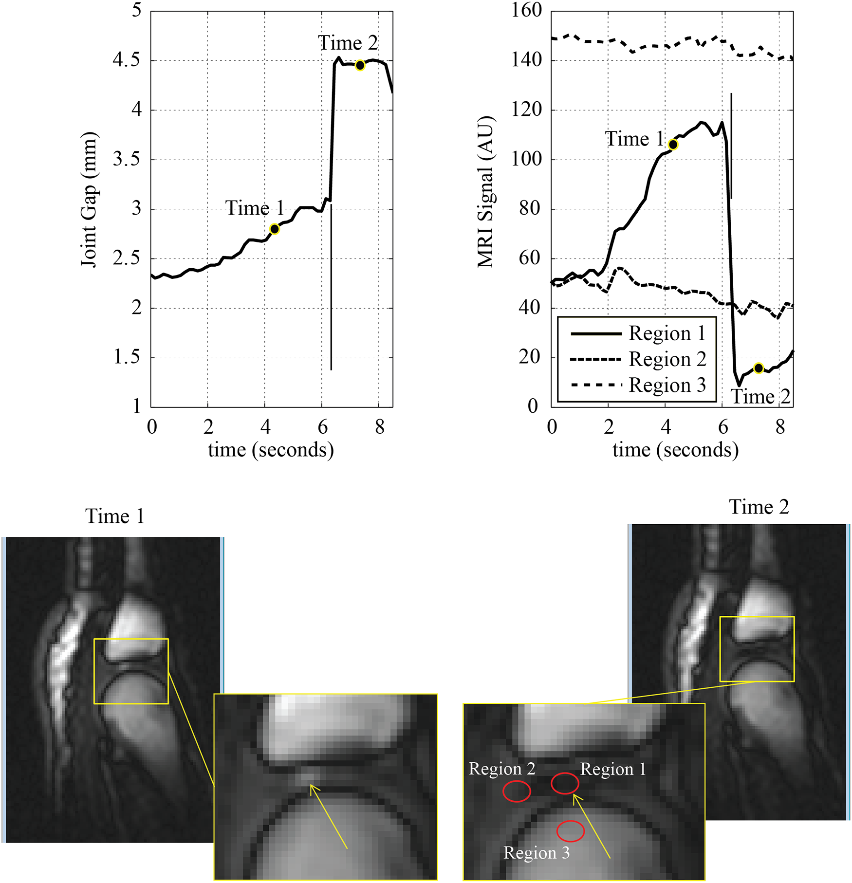 Cine MRI images displayed are those immediately prior to, and after, joint cracking with zoomed regions to demonstrate areas where signal intensities were measured for the region of interest as well as control regions.