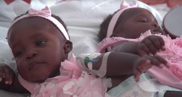 conjoined twins uganda ohio_116322