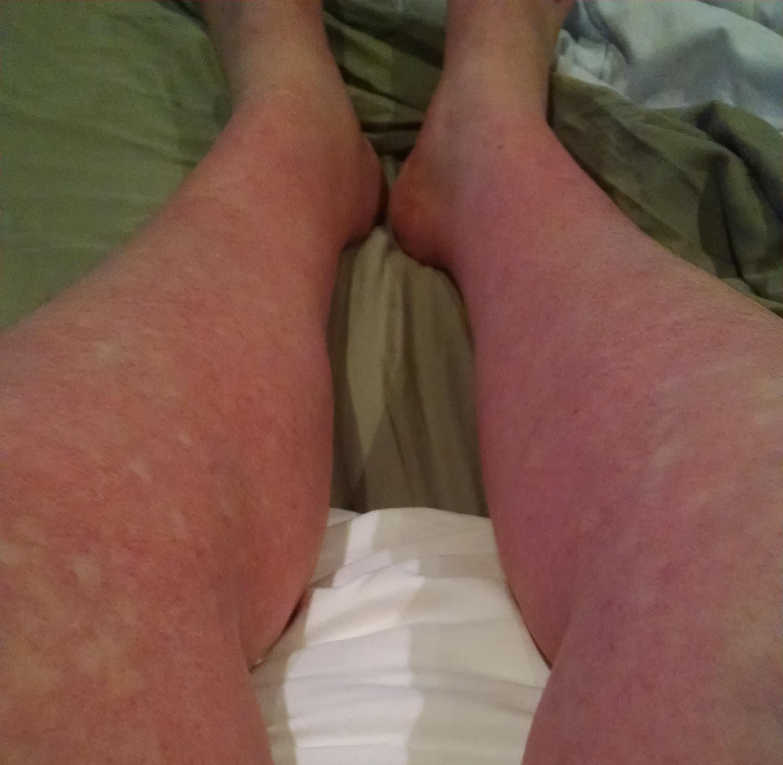 dengue fever rash