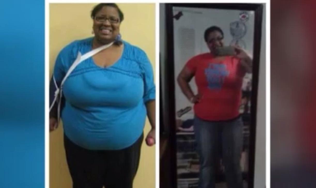 virginia weight loss woman_148710
