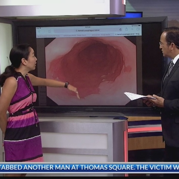 Ask a Specialist: Esophageal cancer