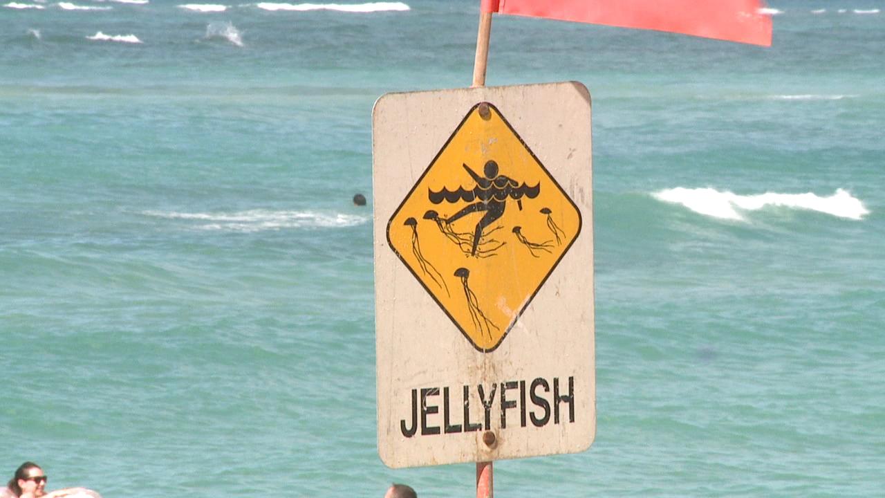 jellyfish sign portuguese man o war influx