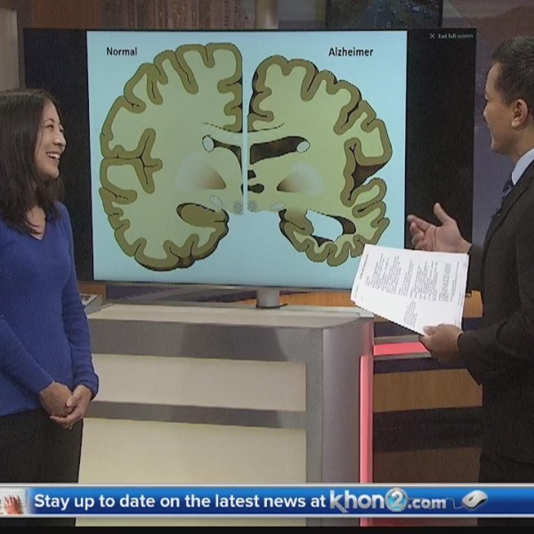 Ask a Specialist: Dementia