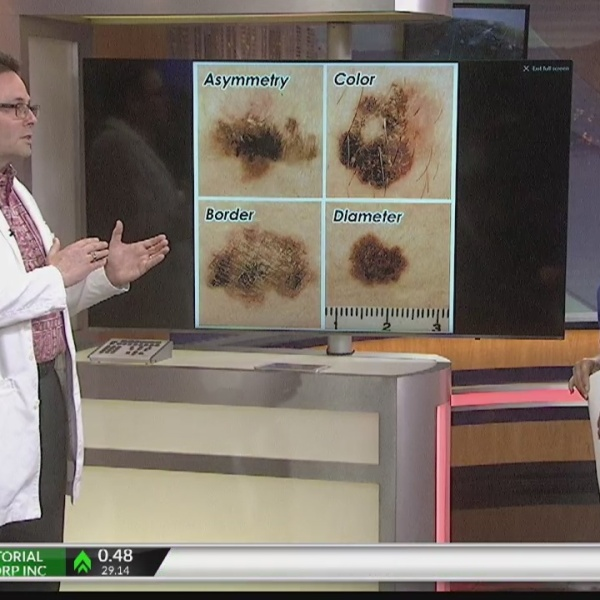 Ask a Specialist: Skin Cancer