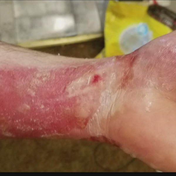 Tri_State_couple_severely_burned_after_u_0_20190507232819-118809222